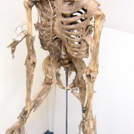 Decomposed Human Skeleton On Stand 175cm high