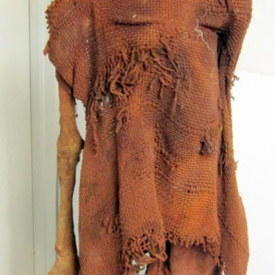 Decomposed Human Body On Stand 177cm high